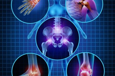 Dr Wallach arthritis help for bone and joint health