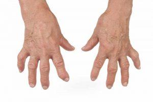 Dr Wallach rheumatoid arthritis help